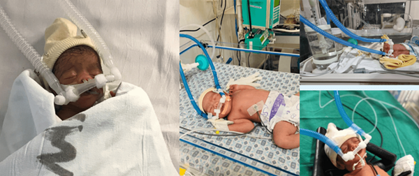 CPAP babies